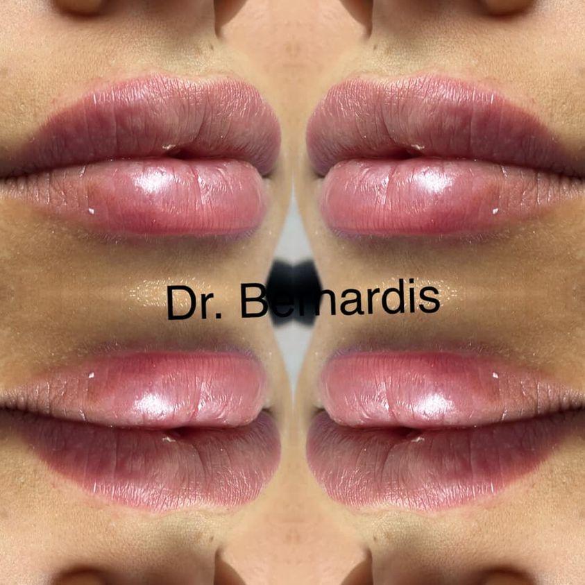 Filler Labbra Bernardis