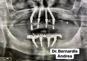 Full Arch Andrea Bernardis